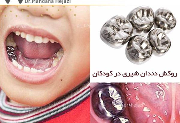 روکش دندان شیری در کودکان