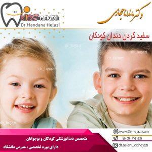 سفید کردن دندان کودکان
