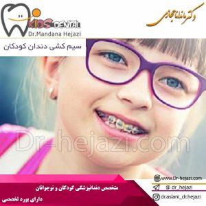 سیم کشی دندان کودکان