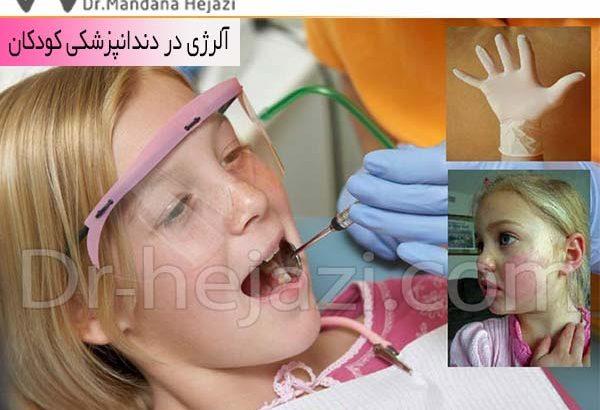 آلرژی در دندانپزشکی کودکان