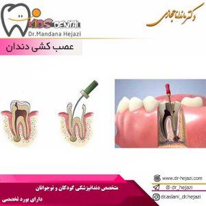 عصب كشي دندان
